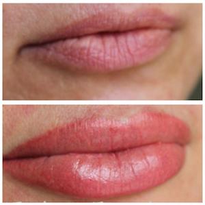 Vorher/Nachher, Permanent Makeup Lippen, 1