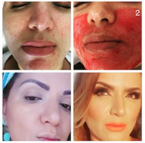 Vorher/Nachher, Permanent Makeup Microbleeding